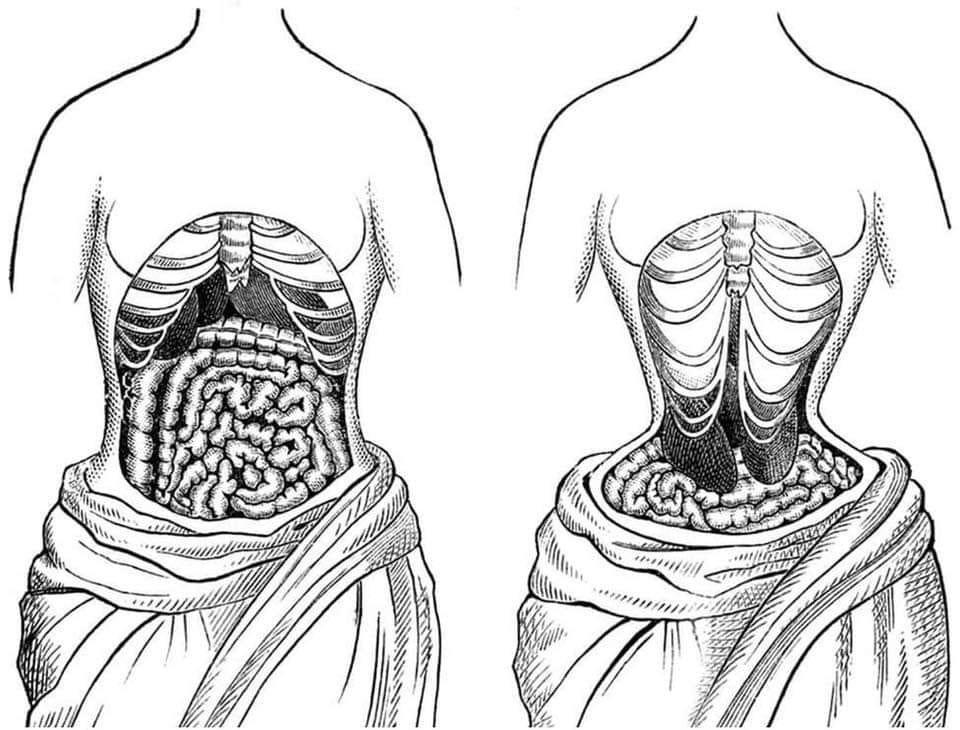 Tác hại của đai nịt bụng