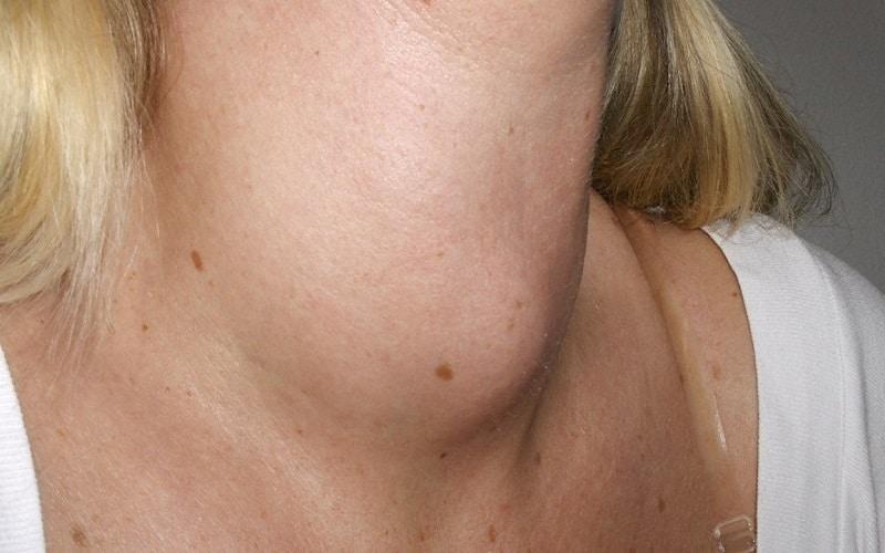 rau cải trời điều trị bướu cổ